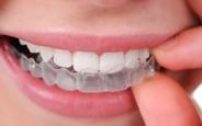Những cách tẩy trắng răng tại nhà nhanh mà hiệu quả
