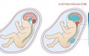 👼 Dị tật ống thần kinh ở thai nhi nguy hiểm thế nào khi trong bụng mẹ