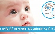 Điều trị tắc tuyến lệ ở trẻ em