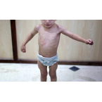 👼Nguyên nhân trẻ bị còi xương, suy dinh dưỡng